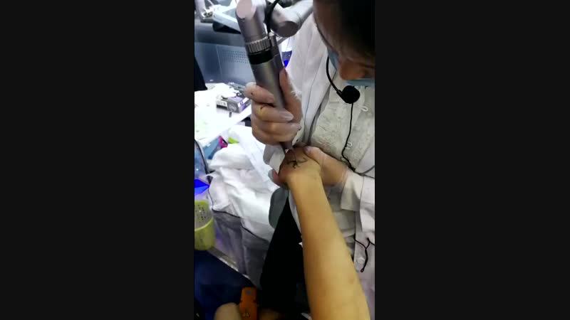 машина 10Хз удаления татуировки лазера пикосекунды 532нм 1064нм 550мдж 祛文身