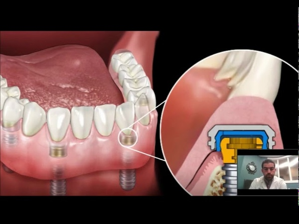 Dental Implant Overdenture Snap In Dentures