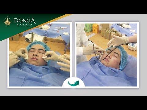 Cận cảnh điều trị sẹo rỗ lõm bằng công nghệ Bio Plus