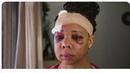 Headshots: How Israeli Military tactics are being used on U.S Protestors: Meet the Survivors