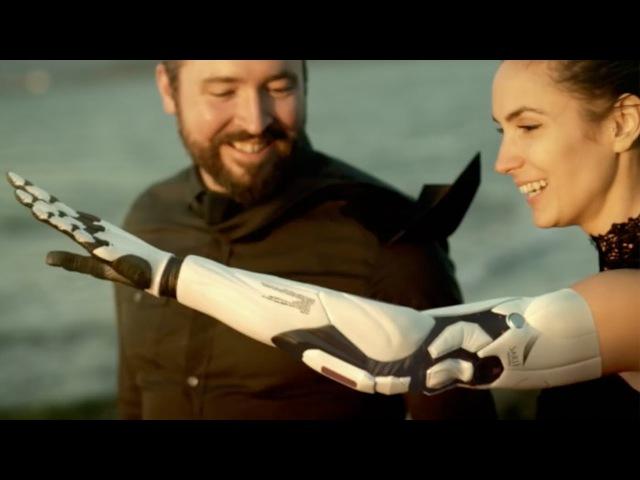 Меняем руку на бионический протез