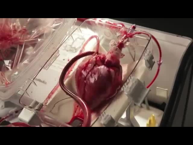 Mein Transplant Herz Brennt