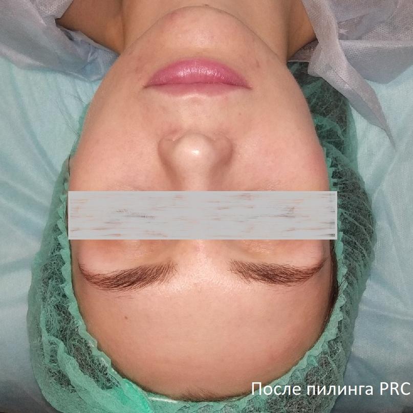 Подготовка кожи к пилингам. Виды пилингов. Действие кислот., изображение №8