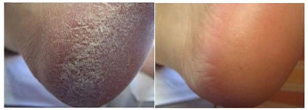 на фото: пятки до и после регулярного применения жидкого лезвия