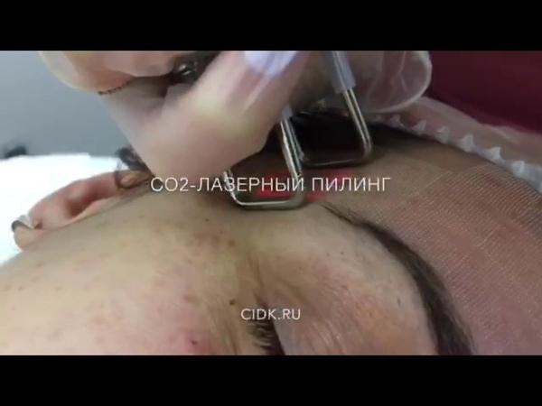 Лазерный пилинг РФ-лифтинг на аппарате Deka smart Xide 2 dot