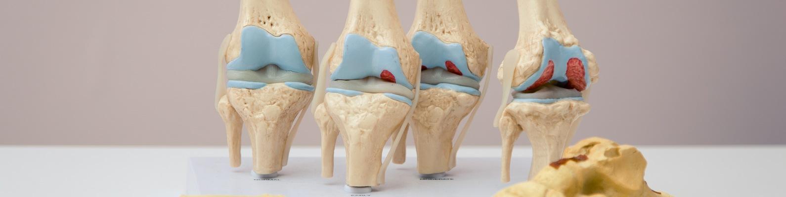Упражнения лечения артроза плечевого сустава
