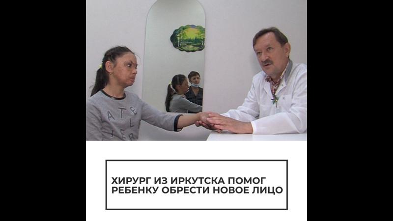 Хирург из Иркутска помог ребенку обрести новое лицо