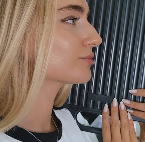 Мария Давидова сделала коррекции носа